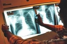 Усовершенствована процедура оказания противотуберкулезной помощи